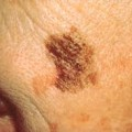 Image for Melanoma
